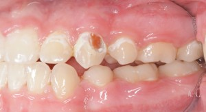Tooth Rotting from not brushing